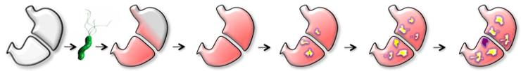 Разные стадии гастрита желудка