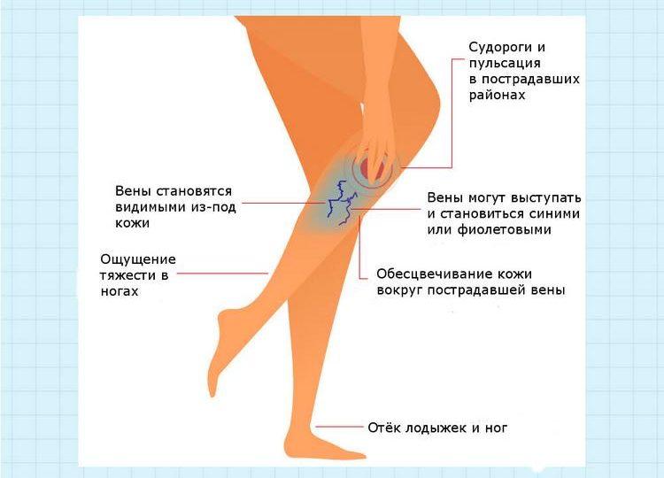 Признаки варикоза
