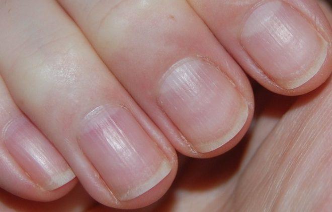 Народные методы лечения ногтевой дистрофии