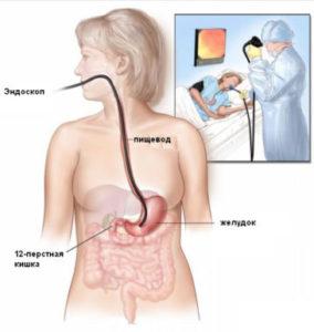Диагностика гастрита эндоскопом у женщины
