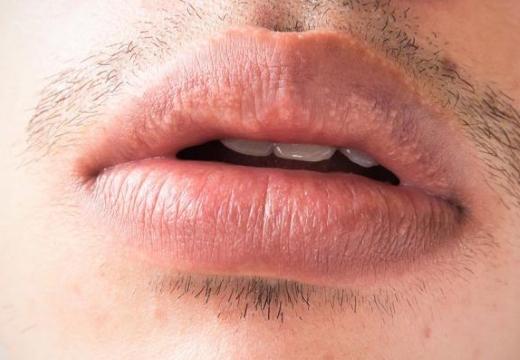 пятна фордайса на губах