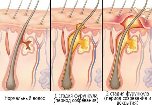 стадии фурункулеза
