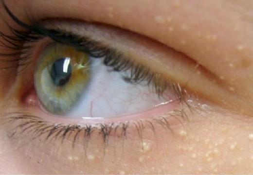 жировики вокруг глаз