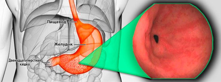 Антральный гастрит желудка