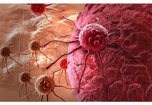Онко клетки