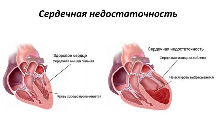 Кашель при сердечной недостаточности, симптомы