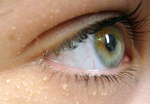 милиумы вокруг глаз