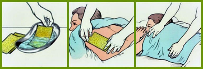 Как ставить горчичники при кашле взрослому