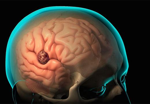 модель абсцесса в голове
