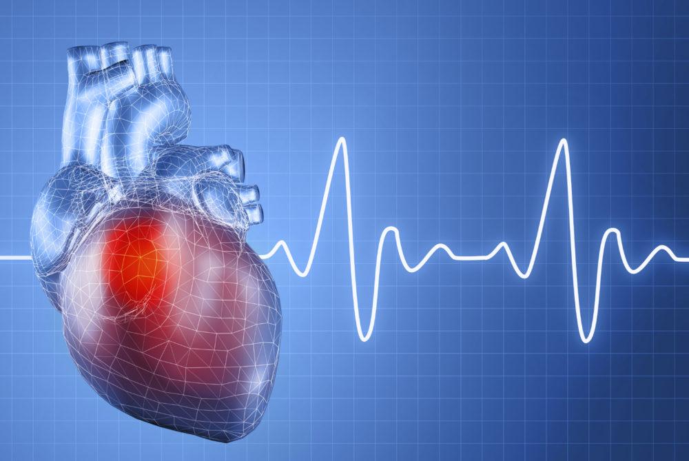 Осложнения гипертонической болезни: органы-мишени при ...