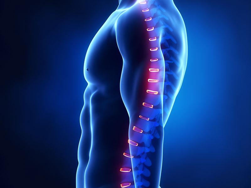 Бисфосфонаты для лечения остеопороза при раке