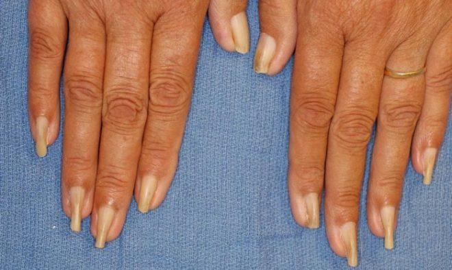 Заболевания ногтей на руках