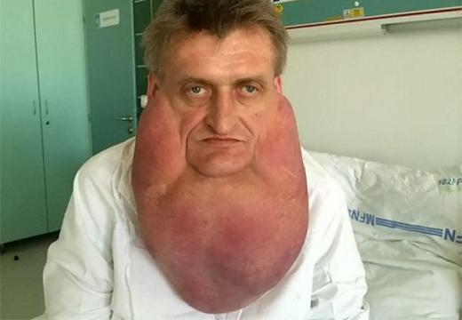 мужчина с редким заболеванием