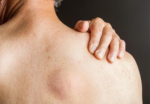 липома на плече