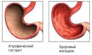 Атрофический гастрит как выглядят стенки желудка