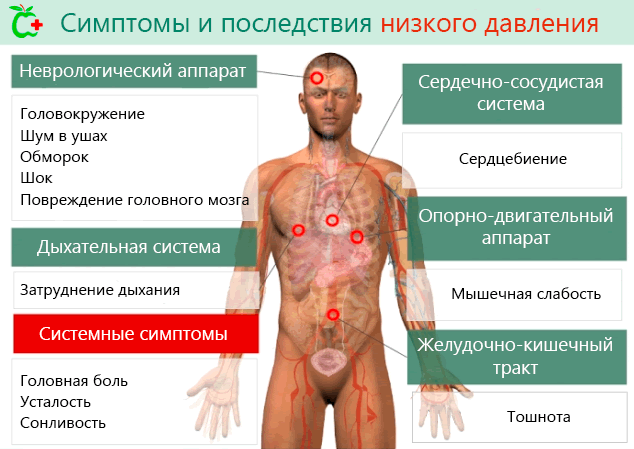 Симптомы гипотонии