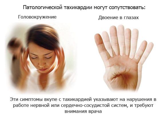Патологическая тахикардия