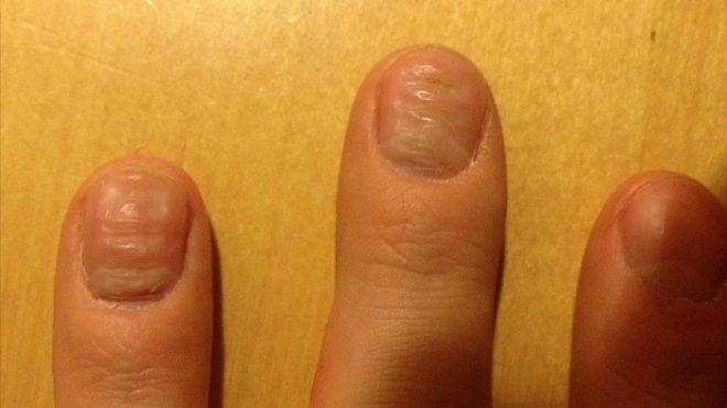 причины волнистости ногтей