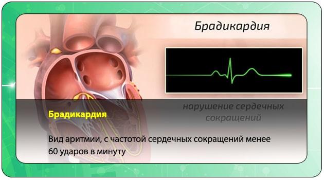 Что такое брадикардия